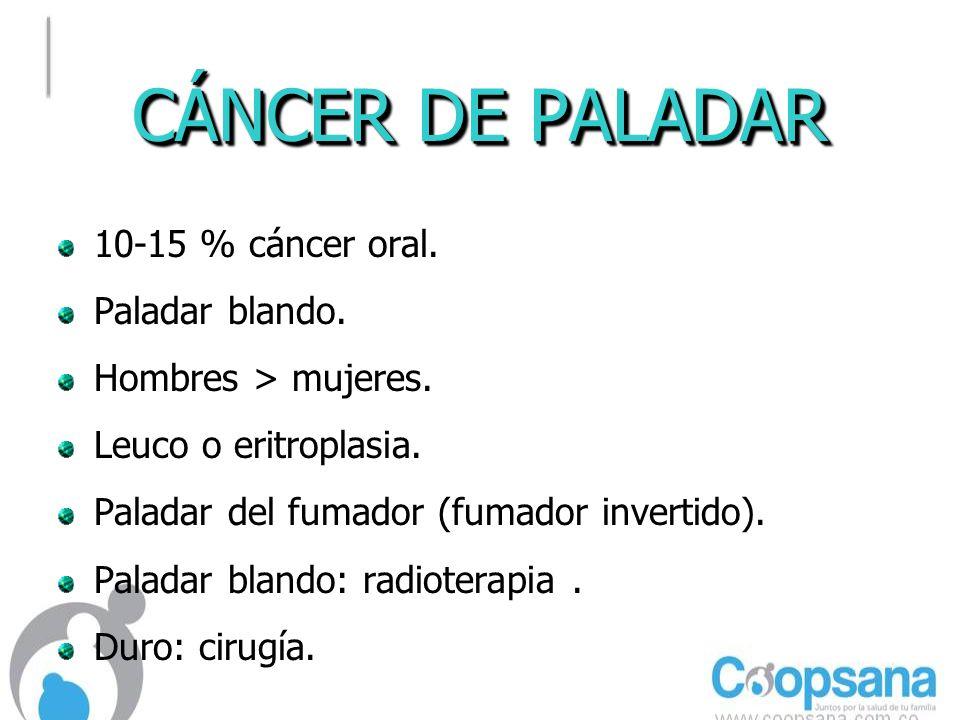 CÁNCER DE PALADAR 10-15 % cáncer oral. Paladar blando.