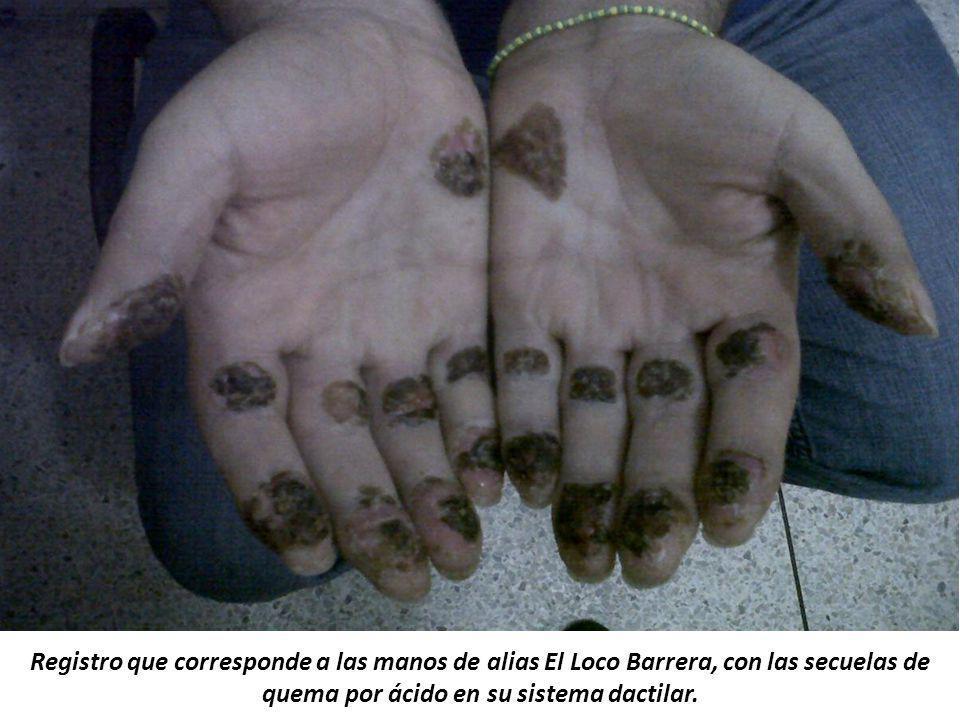 Registro que corresponde a las manos de alias El Loco Barrera, con las secuelas de quema por ácido en su sistema dactilar.