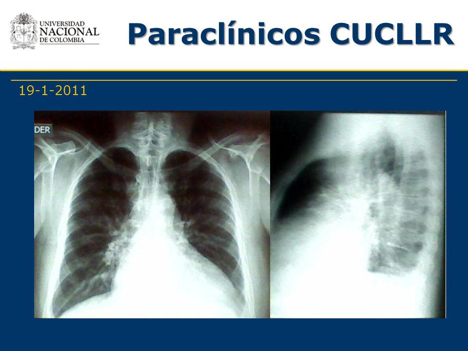 Paraclínicos CUCLLR 19-1-2011 -Farmacológicos -Quirúrgicos: No refiere