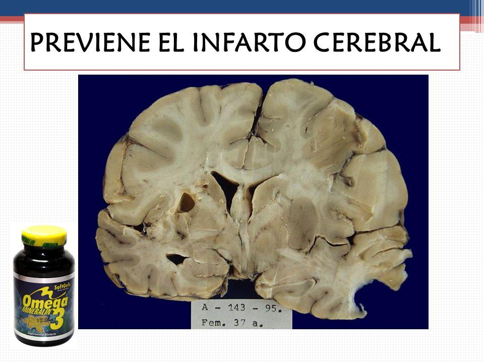 PREVIENE EL INFARTO CEREBRAL