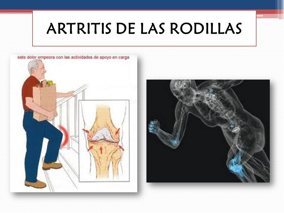 ARTRITIS DE LAS RODILLAS