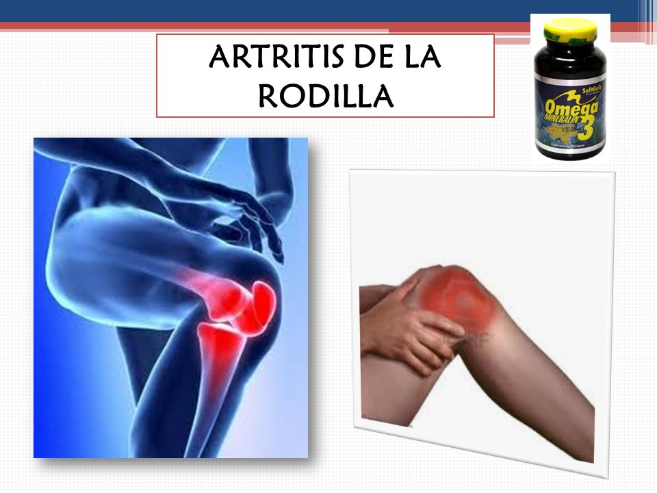 ARTRITIS DE LA RODILLA