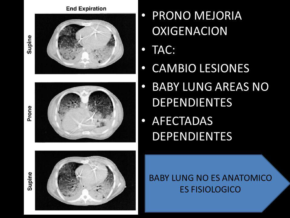 BABY LUNG NO ES ANATOMICO