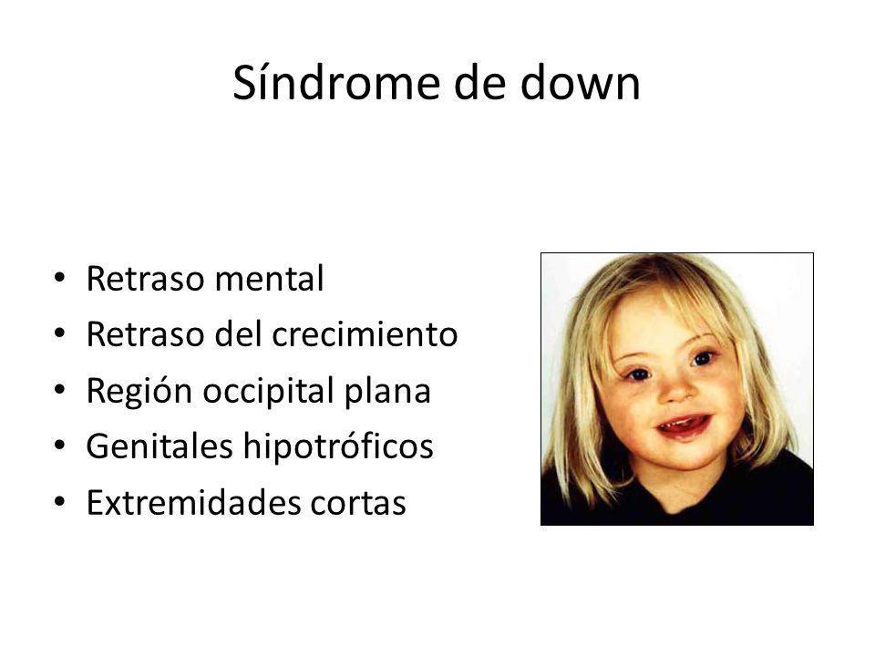 Síndrome de down Retraso mental Retraso del crecimiento