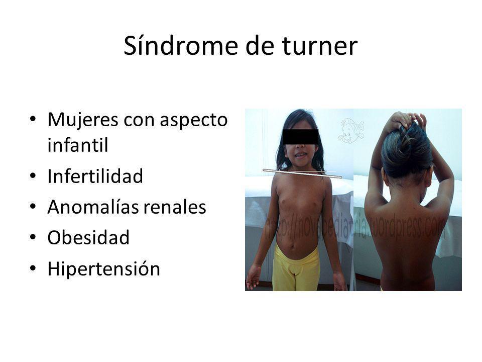 Síndrome de turner Mujeres con aspecto infantil Infertilidad