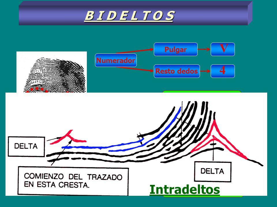 B I D E L T O S V 4 Intradeltos Intradelto - i- Extradelto - e -