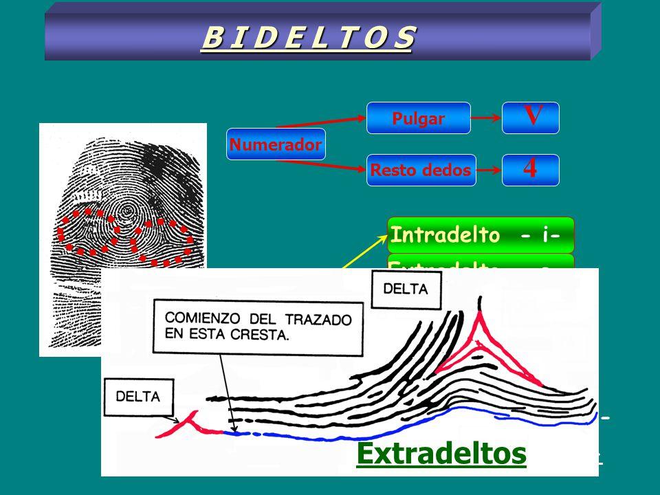B I D E L T O S V 4 Extradeltos Intradelto - i- Extradelto - e -