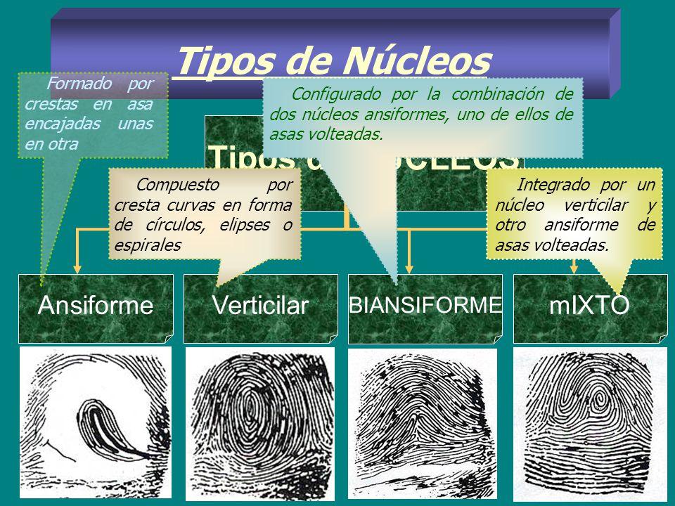 Tipos de Núcleos Tipos de NUCLEOS Ansiforme Verticilar mIXTO