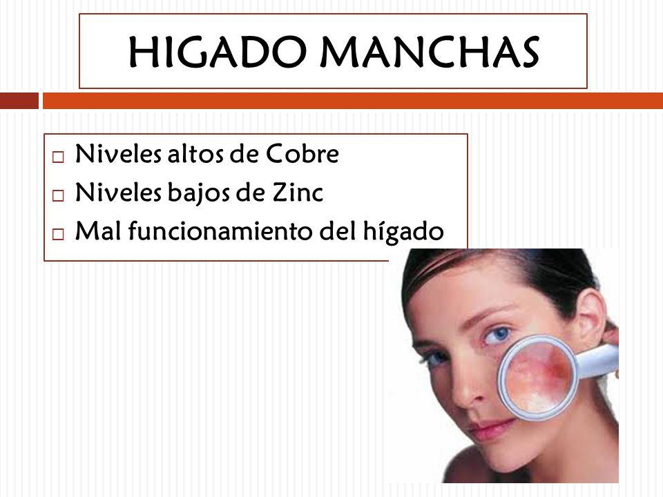 HIGADO MANCHAS Niveles altos de Cobre Niveles bajos de Zinc