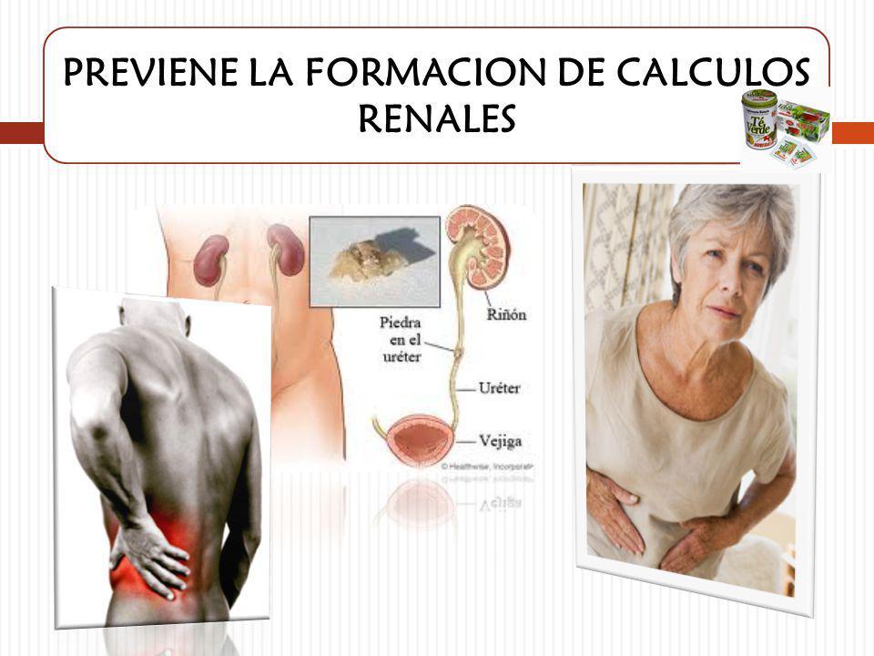 PREVIENE LA FORMACION DE CALCULOS RENALES