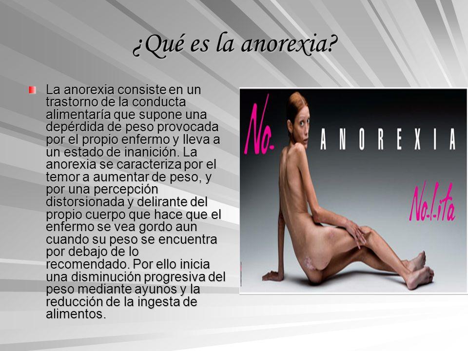 ¿Qué es la anorexia