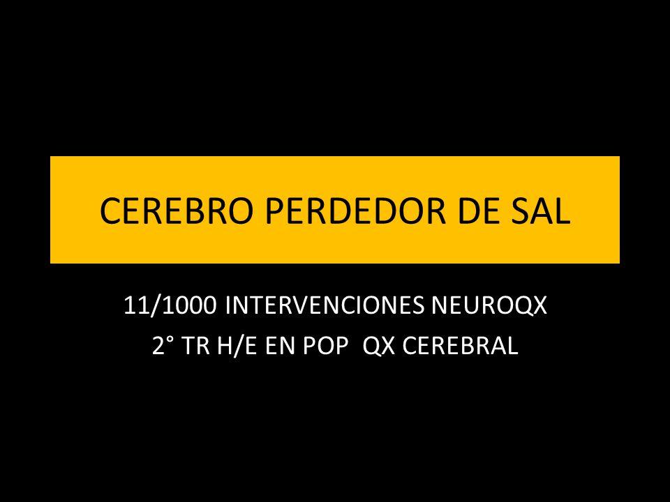 CEREBRO PERDEDOR DE SAL