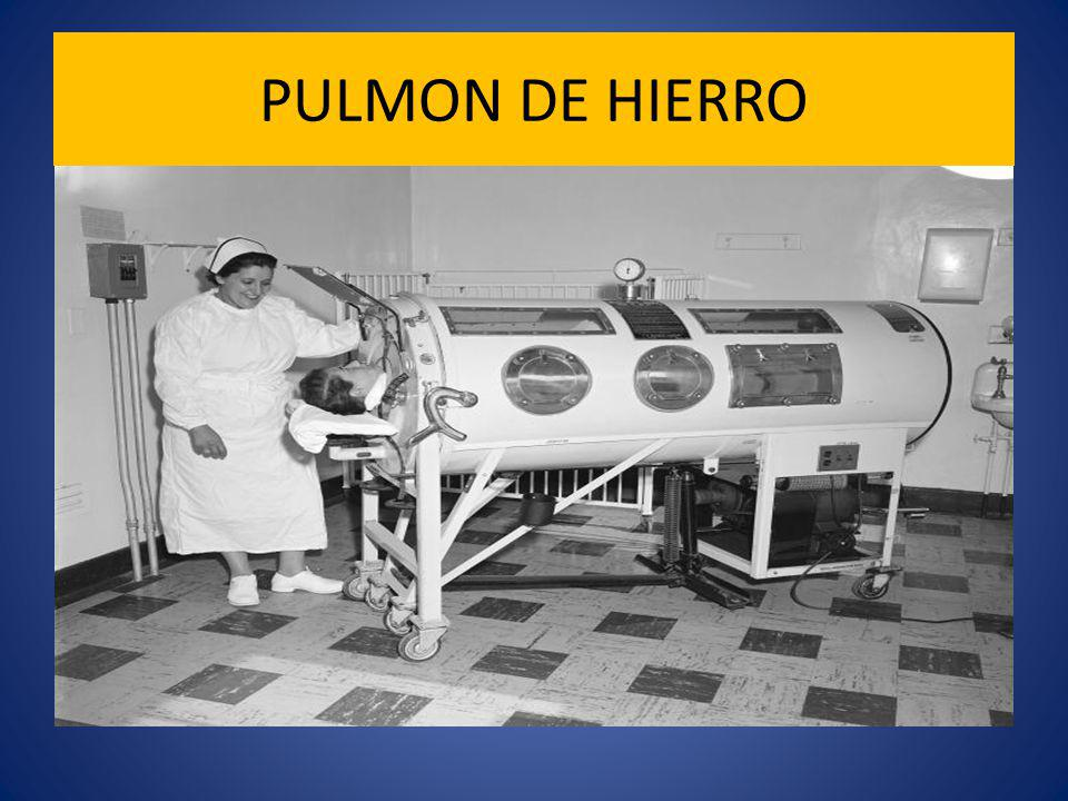 PULMON DE HIERRO