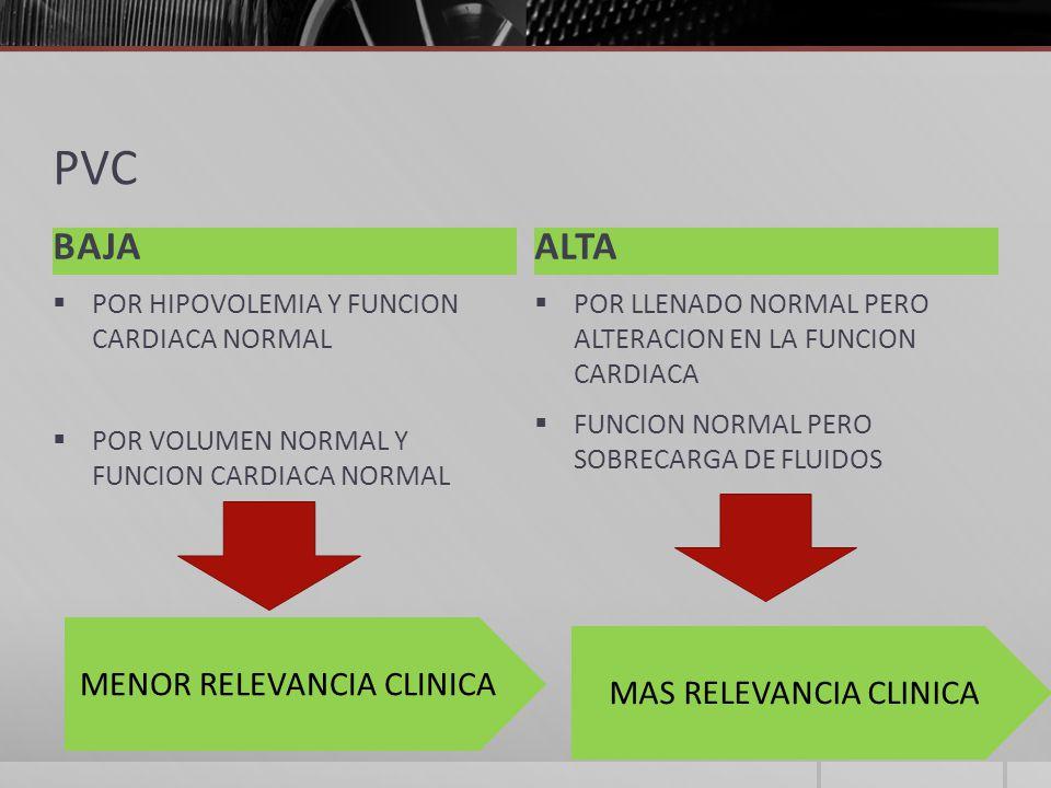 PVC BAJA ALTA MENOR RELEVANCIA CLINICA MAS RELEVANCIA CLINICA