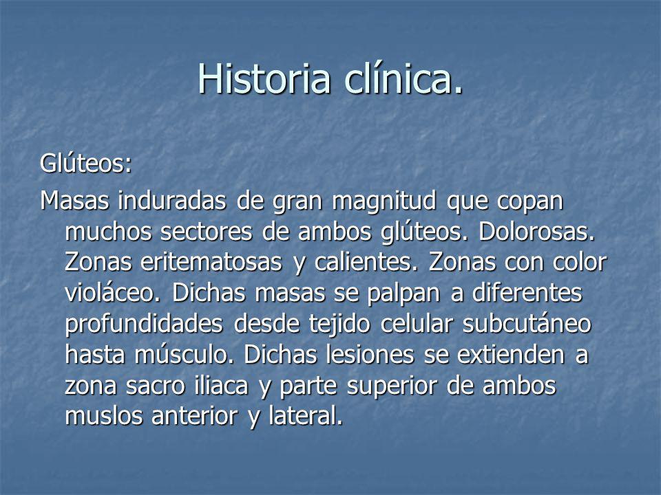 Historia clínica. Glúteos:
