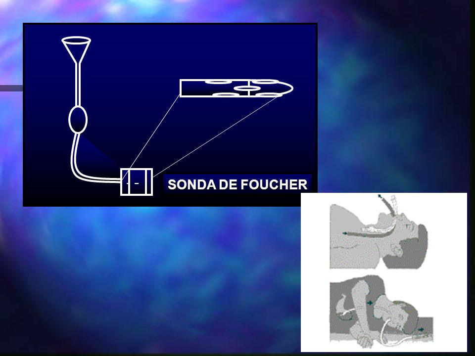 - SONDA DE FOUCHER
