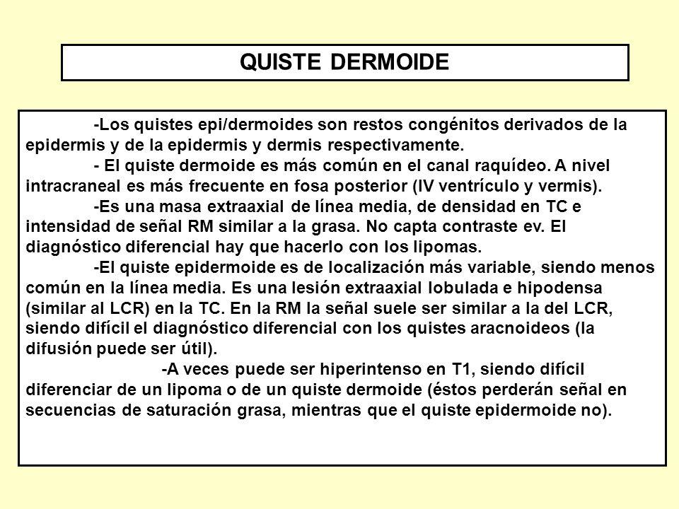 QUISTE DERMOIDE -Los quistes epi/dermoides son restos congénitos derivados de la epidermis y de la epidermis y dermis respectivamente.