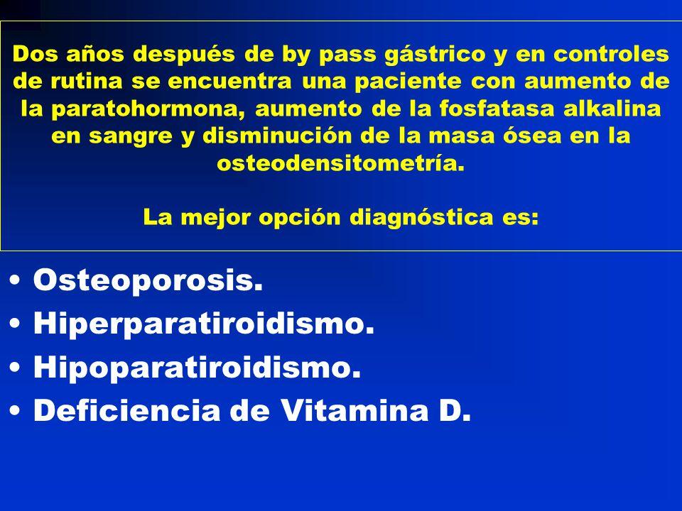 Deficiencia de Vitamina D.