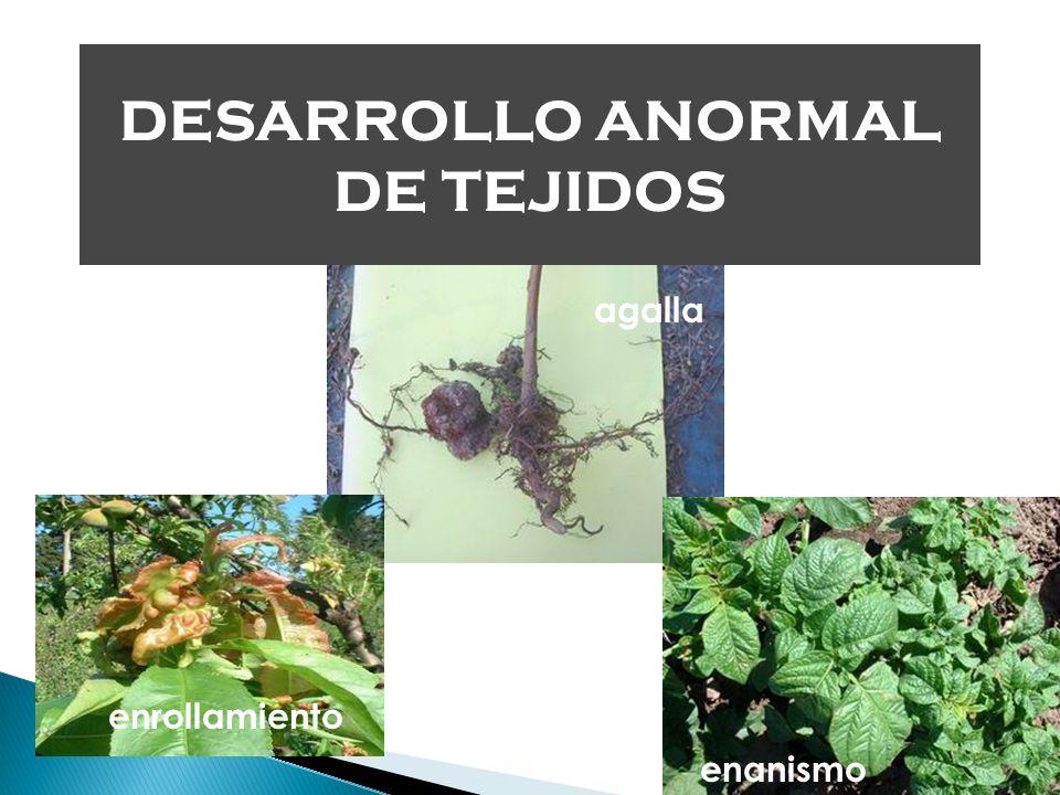 DESARROLLO ANORMAL DE TEJIDOS