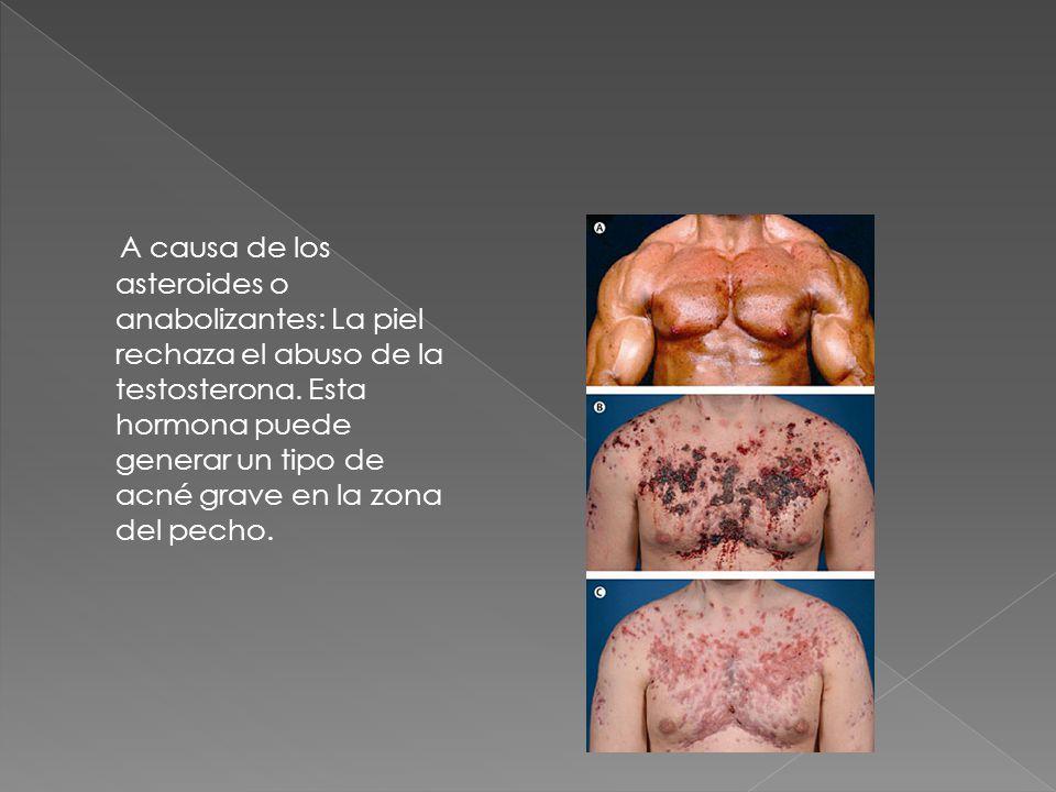 A causa de los asteroides o anabolizantes: La piel rechaza el abuso de la testosterona.