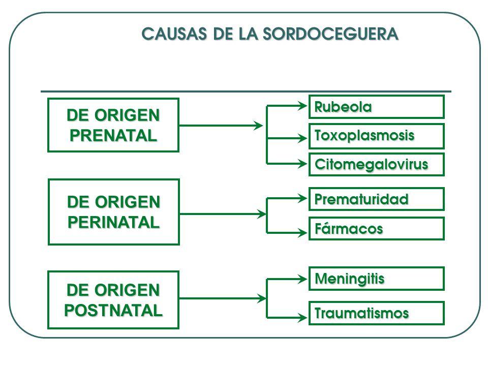 CAUSAS DE LA SORDOCEGUERA
