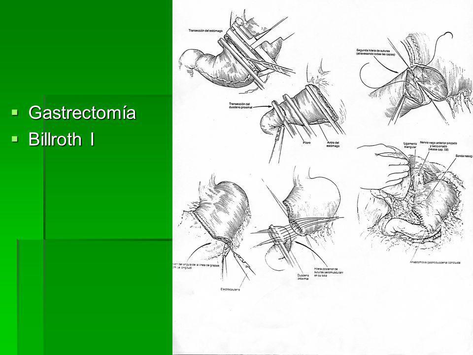 Gastrectomía Billroth I