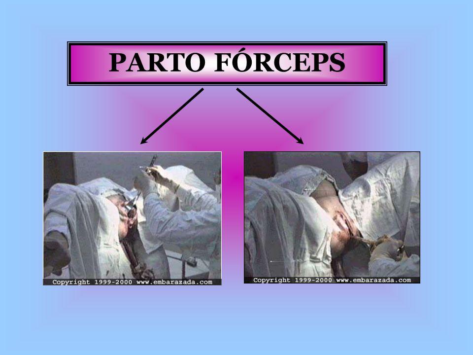 PARTO FÓRCEPS