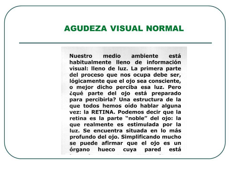 AGUDEZA VISUAL NORMAL