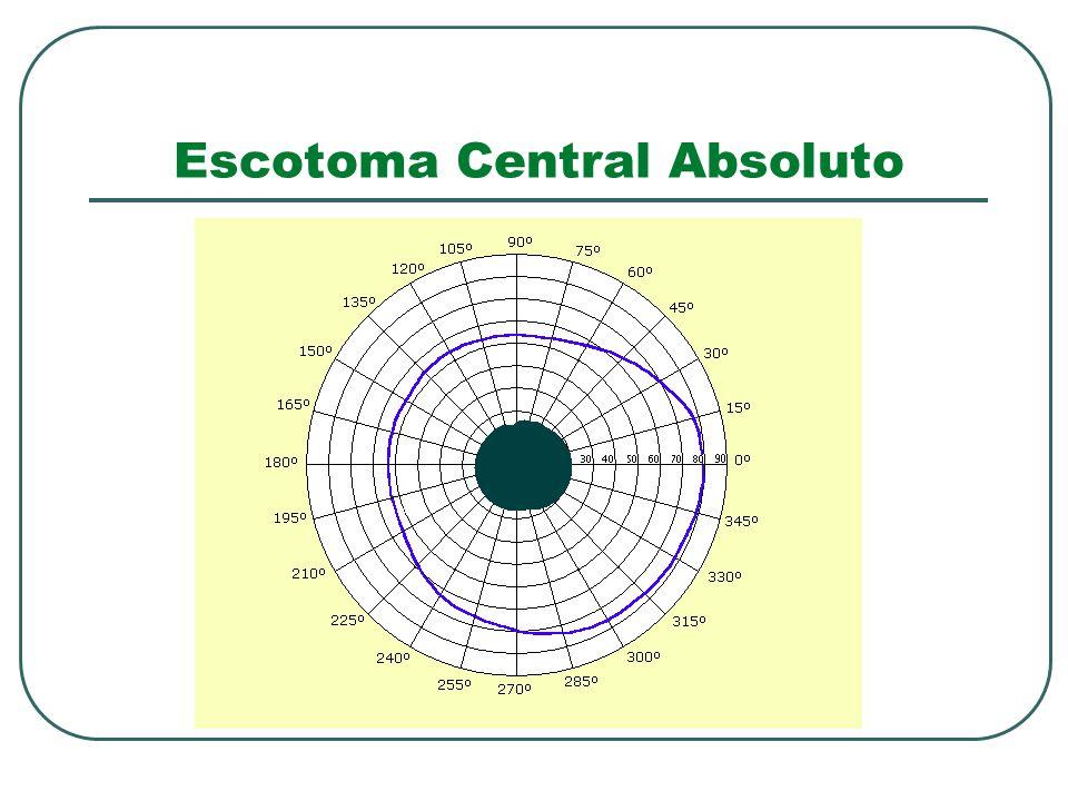 Escotoma Central Absoluto