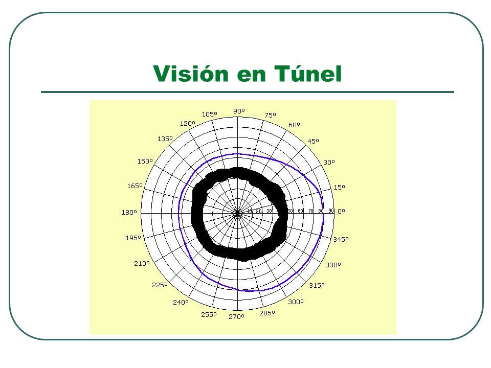Visión en Túnel