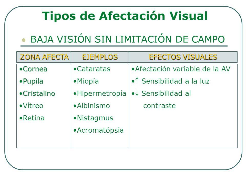 Tipos de Afectación Visual