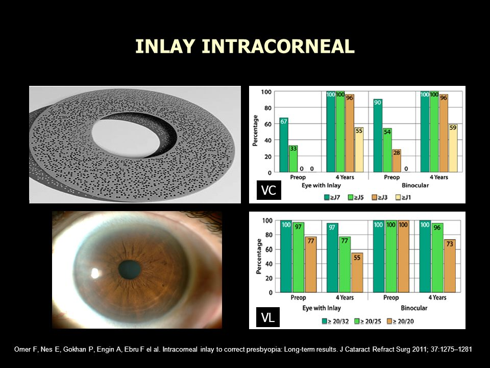 INLAY INTRACORNEAL VC VL