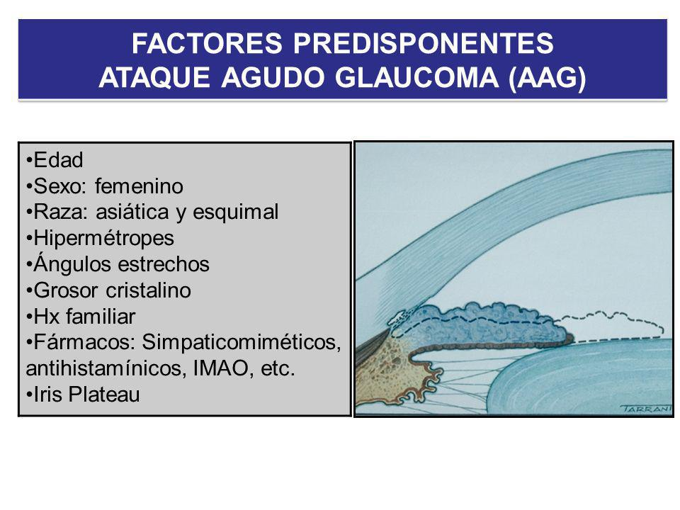 FACTORES PREDISPONENTES ATAQUE AGUDO GLAUCOMA (AAG)