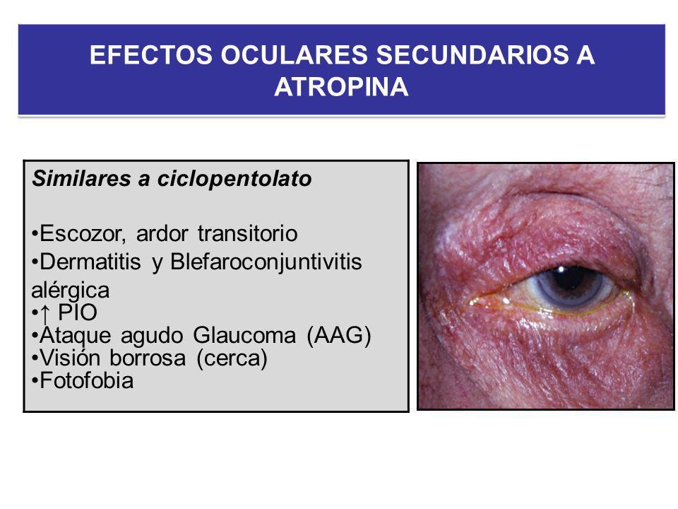 EFECTOS OCULARES SECUNDARIOS A ATROPINA
