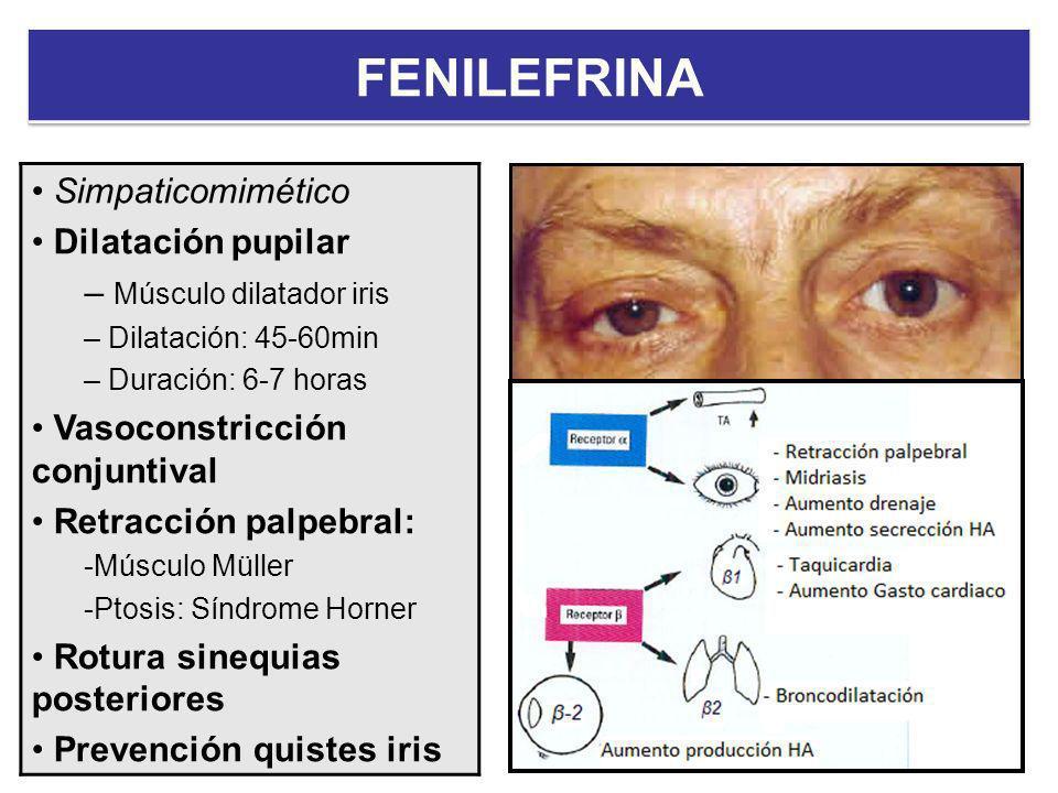 FENILEFRINA Simpaticomimético Dilatación pupilar