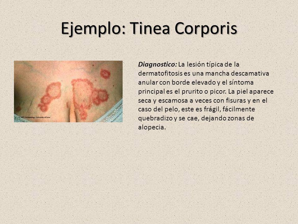 Ejemplo: Tinea Corporis