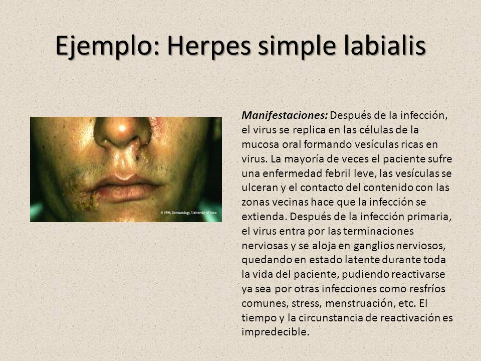 Ejemplo: Herpes simple labialis