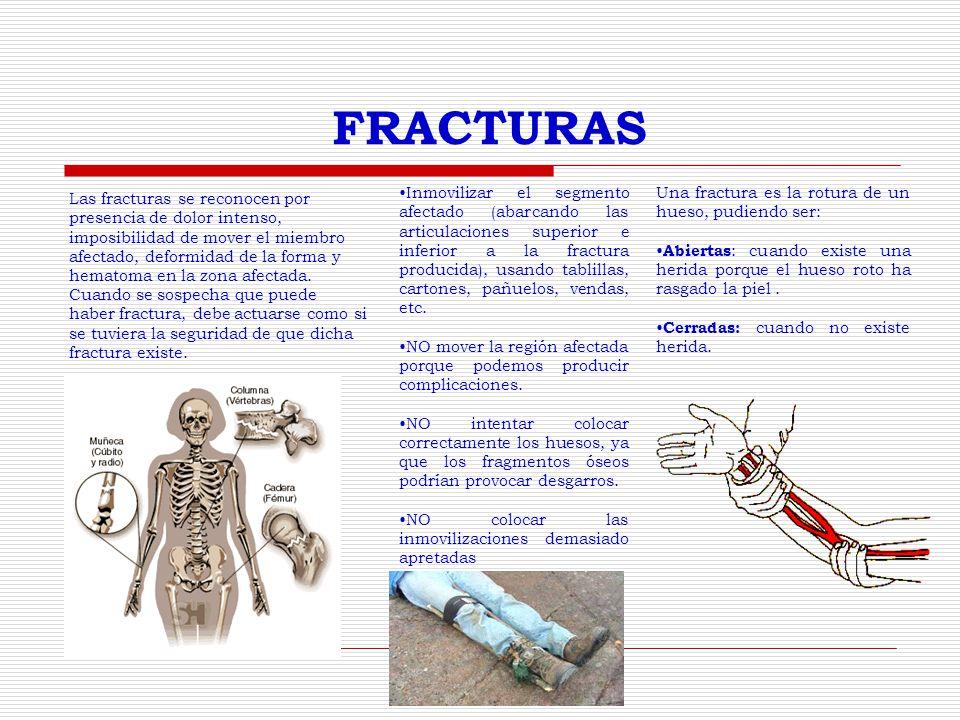 FRACTURAS Las fracturas se reconocen por presencia de dolor intenso,