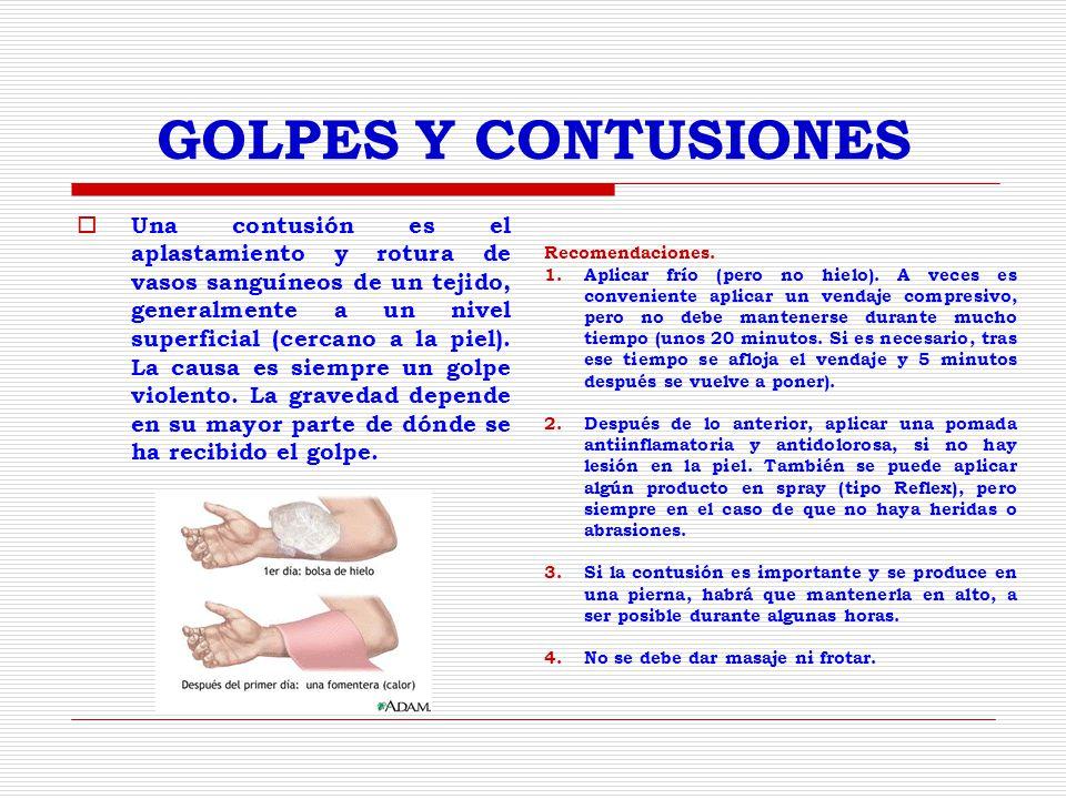 GOLPES Y CONTUSIONES