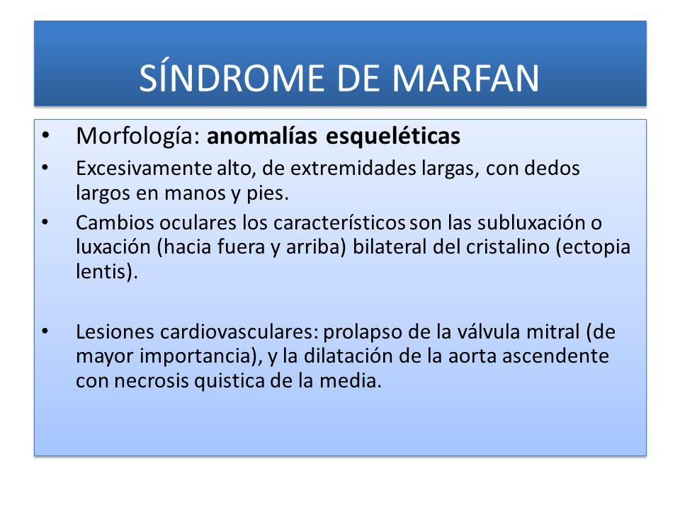 SÍNDROME DE MARFAN Morfología: anomalías esqueléticas