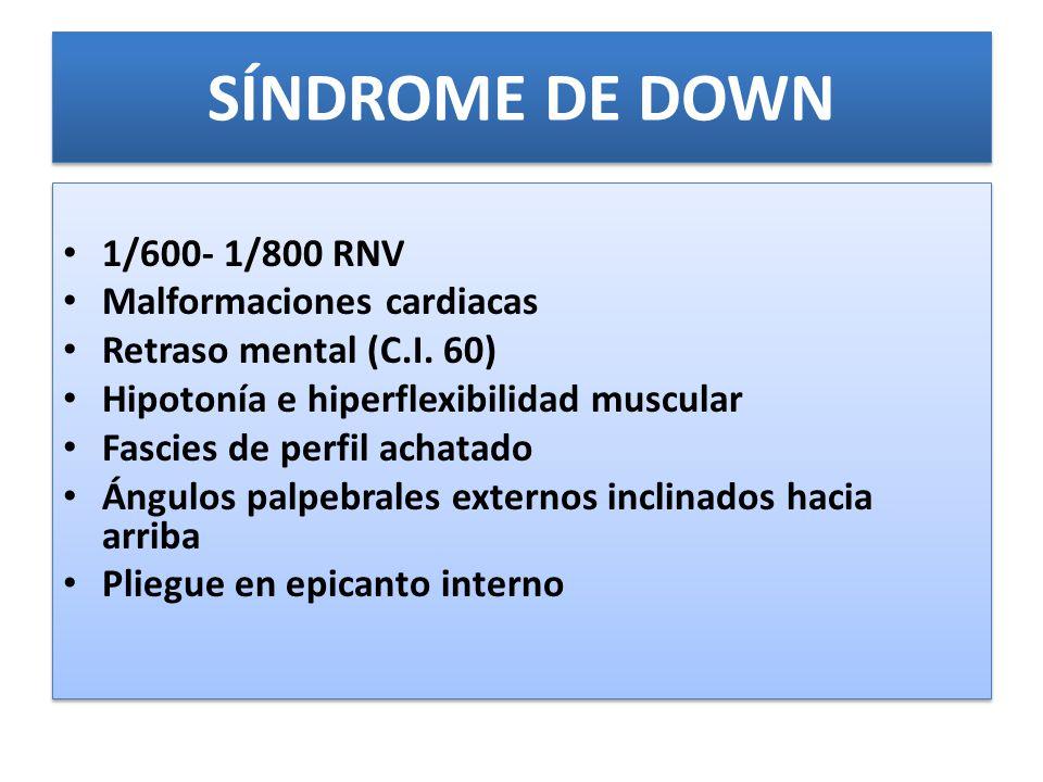 SÍNDROME DE DOWN 1/600- 1/800 RNV Malformaciones cardiacas