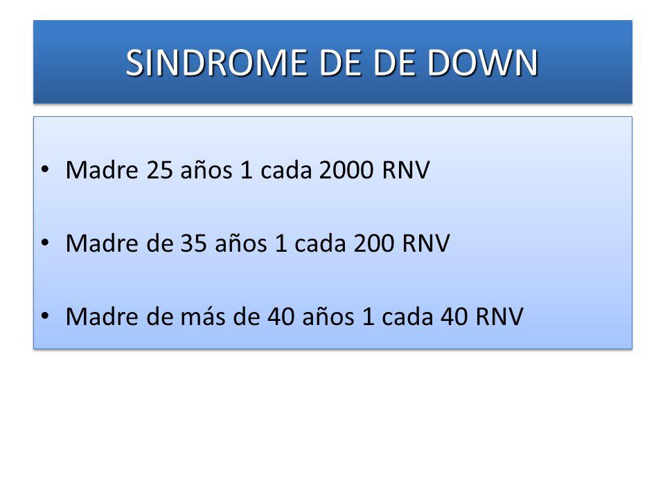 SINDROME DE DE DOWN Madre 25 años 1 cada 2000 RNV
