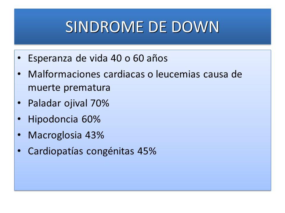 SINDROME DE DOWN Esperanza de vida 40 o 60 años