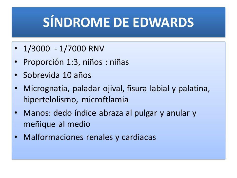 SÍNDROME DE EDWARDS 1/3000 - 1/7000 RNV Proporción 1:3, niños : niñas
