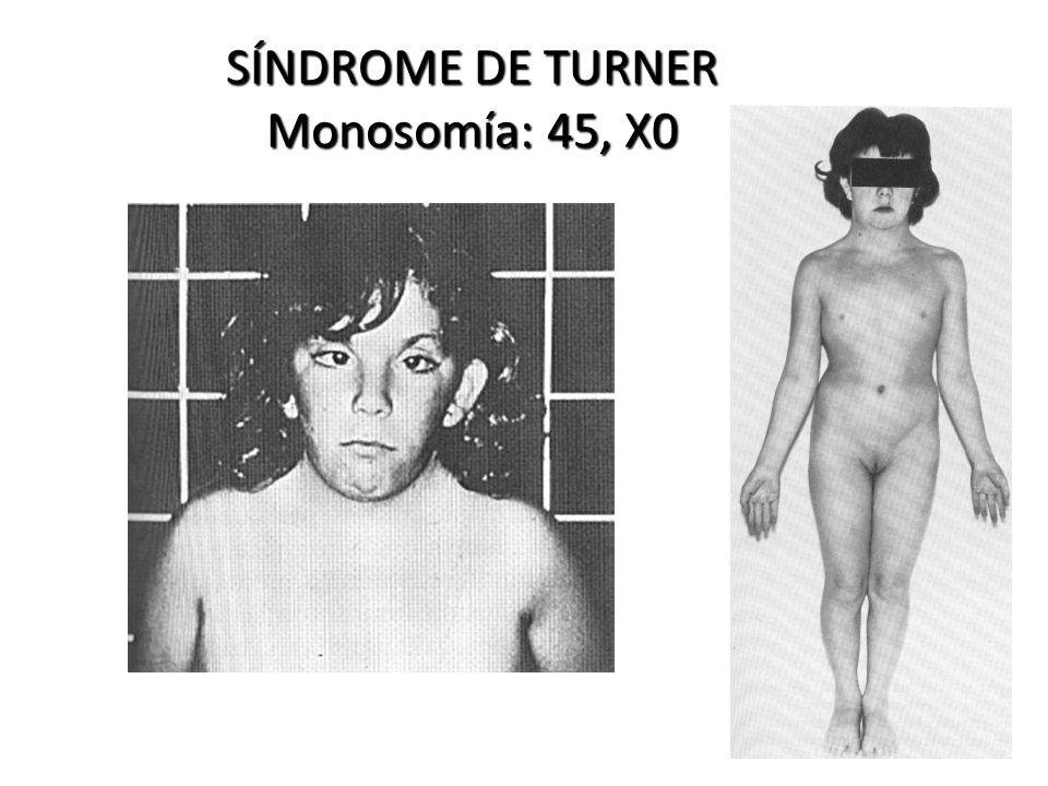 SÍNDROME DE TURNER Monosomía: 45, X0