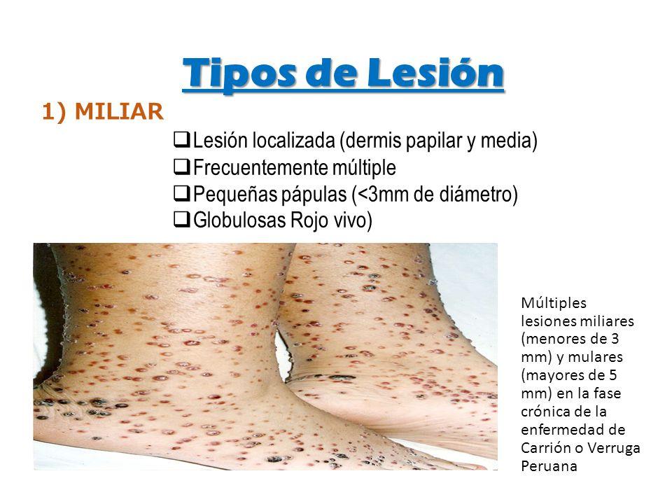Tipos de Lesión 1) MILIAR Lesión localizada (dermis papilar y media)