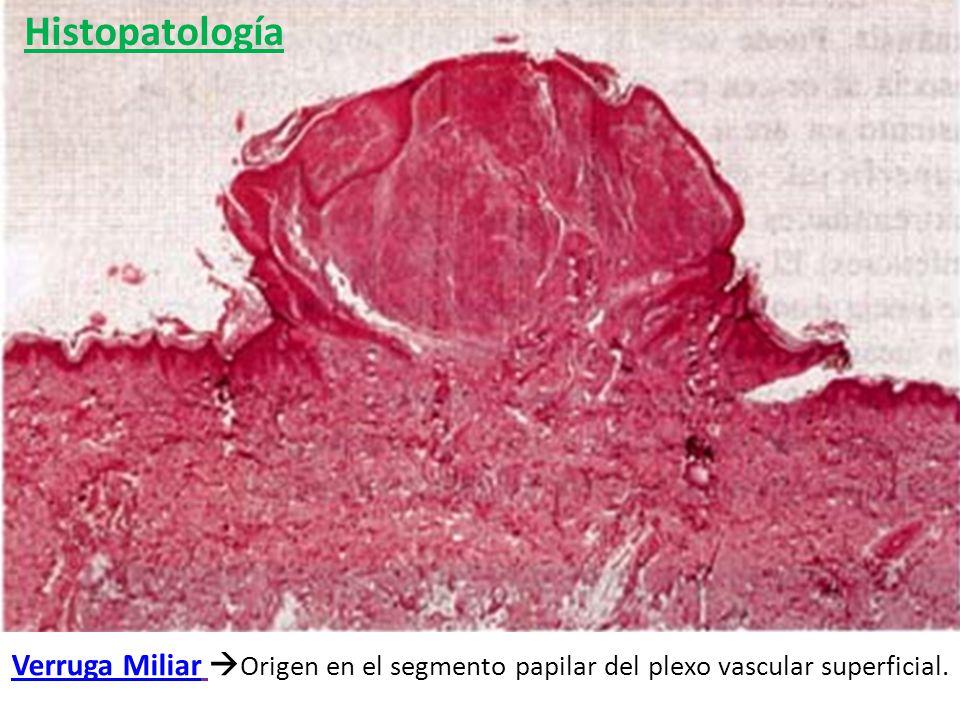Histopatología Verruga Miliar Origen en el segmento papilar del plexo vascular superficial.