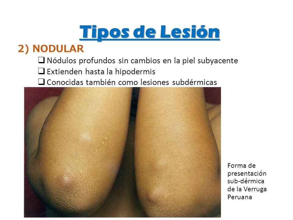 Tipos de Lesión 2) NODULAR