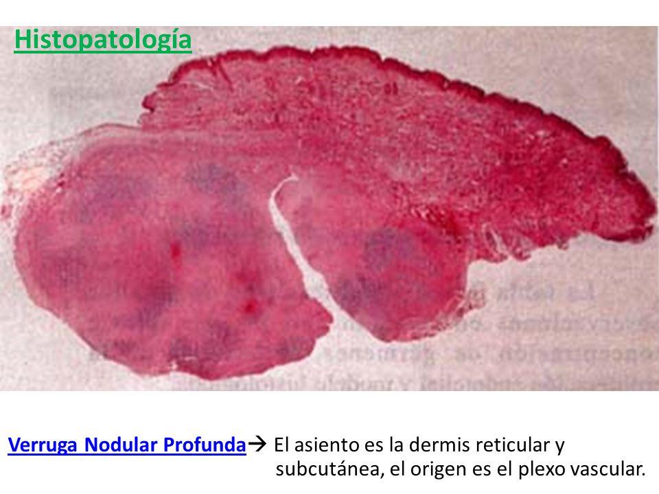 Histopatología Verruga Nodular Profunda El asiento es la dermis reticular y subcutánea, el origen es el plexo vascular.