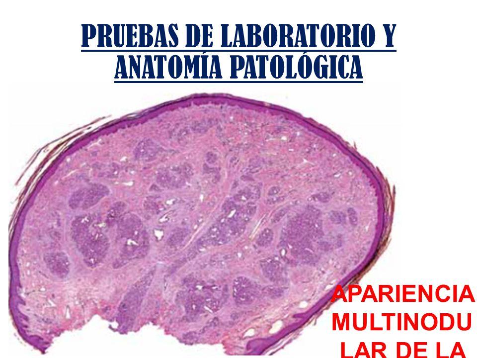 PRUEBAS DE LABORATORIO Y ANATOMÍA PATOLÓGICA